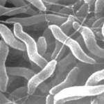 増加するカンピロバクター食中毒の症状や予防法を知りましょう。