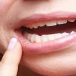 口内炎を早く治すための4つの方法とは?辛い口内炎、早く治しましょう